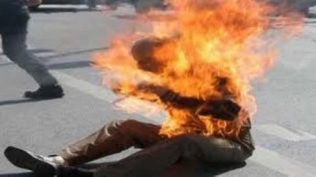 مؤلم…مواطن جزائري يضرم النار في جسده بالرباط