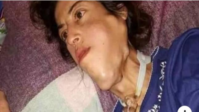 للقلوب الرحيمة…شابة تعاني من سرطان بمدينة فاس