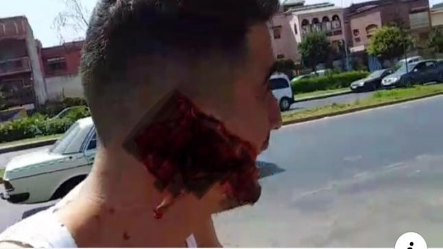 اعتقال الشخص الثاني المتهم في قضية إصابة شخص على مستوى الوجه بالبيضاء