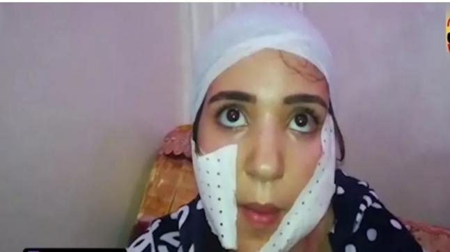 """إعتقال شاب ظهر في فيديو برفقة زوجته قبل أن """"يشرمل"""" وجهها ويلوذ بالفرار بالدار البيضاء"""