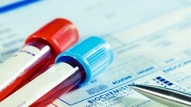 """المغرب يسجل أول حالة إصابة لامرأة حامل بفيروس """"كورونا"""""""
